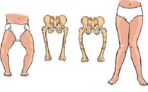 Biến chứng của bệnh còi xương